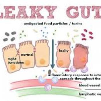 """De """"leaky gut"""" bestaat echt"""